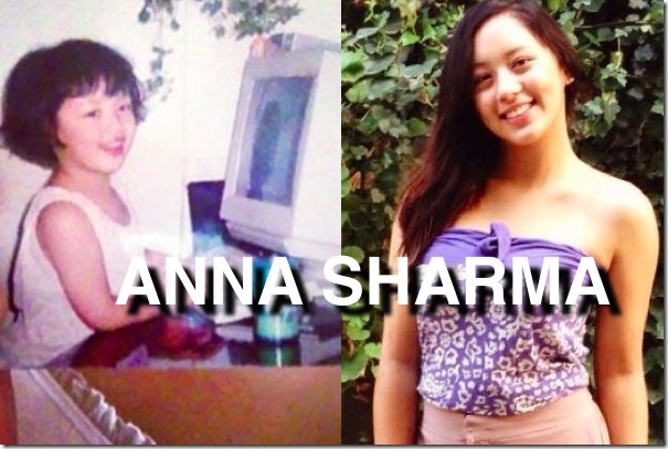 ANNA SHARMA CHILDHOOD PHOTO COMPARED