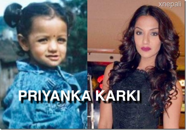 PRIYANKA KARKI CHILDHOOD PHOTO COMPARED