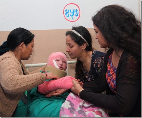 acid attack victim in kmc (5)