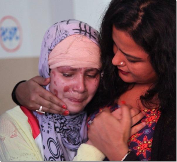 acid attack victim in kmc (8)