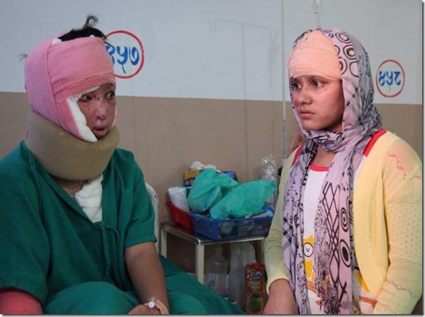 acid attack victim in kmc (sangita and seema)